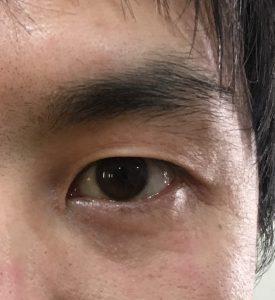 メンズ 眉毛 確認